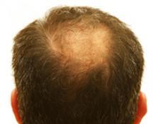 Пересадка (трансплантация) волос